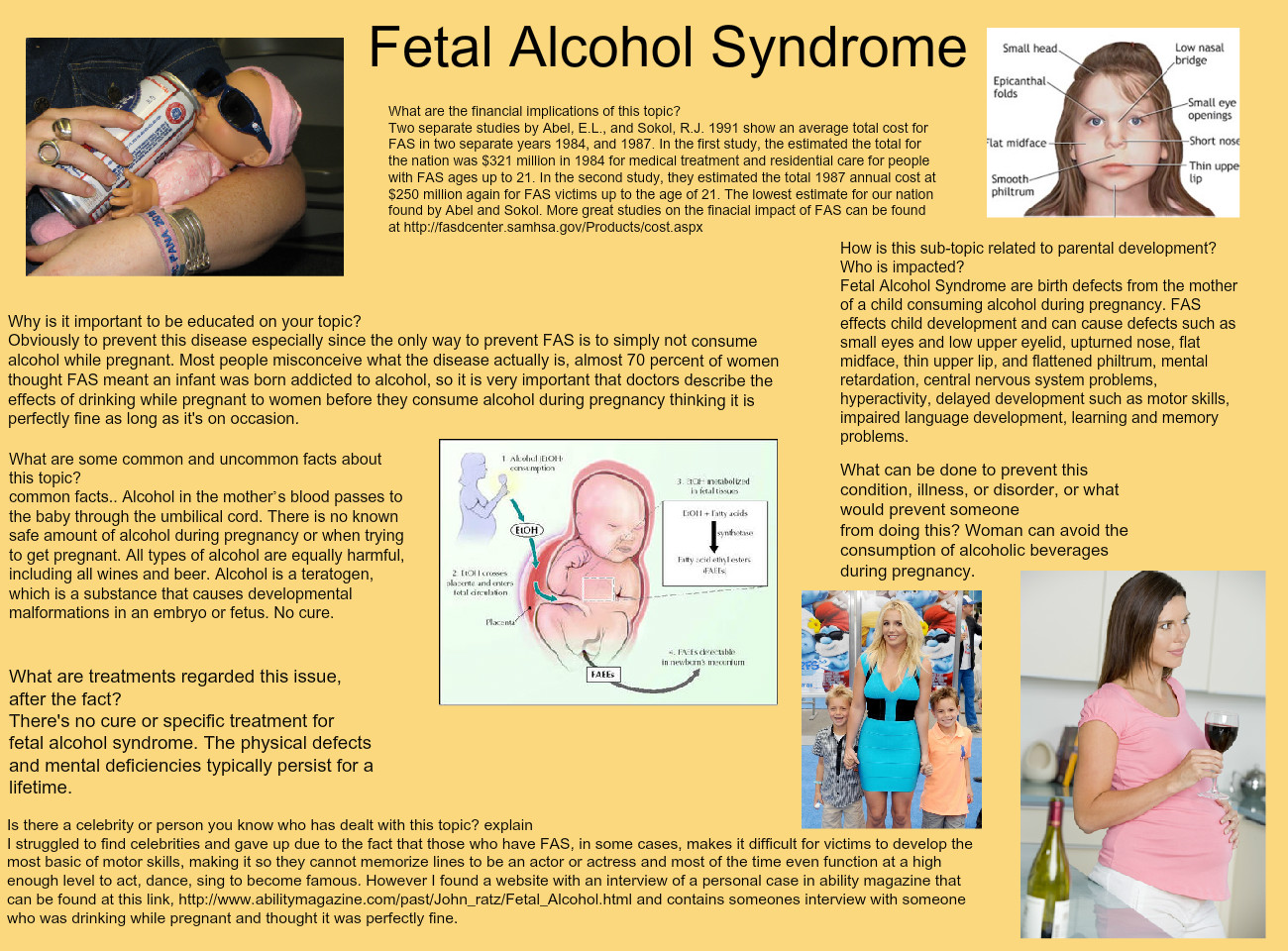 Fetal Alcohol Disorders Are Equally >> Fetal Alcohol Syndrome Alcohol Alcohol Children Development