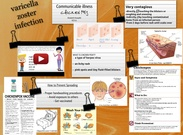 Varicella zoster infection's thumbnail